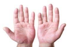 Manlig två gömma i handflatan med eksemet som isoleras på white Arkivfoton