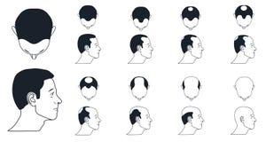 Manliga flintskallighetsymboler Fotografering för Bildbyråer