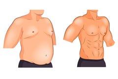 Manliga viktförlust och sportar för torso före och efter royaltyfri illustrationer