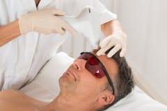 Mann, der Behandlung Lasers Epilation bekommt Stockfotos