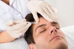 Mann, der Botox-Behandlung hat stockbild