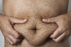 Mann, der das Fett seines Magens ergreift Stockfoto