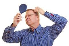 Mann, der seine Zurücktretenhaarzeile überwacht lizenzfreie stockbilder