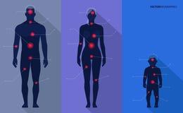 Mann, Frau, Kind, Schmerz zeigt Vektor medizinisches infographics Stockfotografie