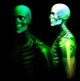 Mann-Knochen 25 Stockbild