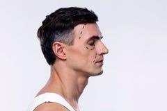 Mann markiert mit Linien für plastische Chirurgie lizenzfreie stockbilder