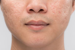 Mann mit öliger Haut und Akne schrammt auf weißem Hintergrund stockfoto