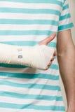 Mann mit der verbundenen Hand, die sich Daumen zeigt Lizenzfreies Stockfoto