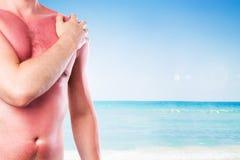 Mann mit einem Sonnenbrand Stockfotos