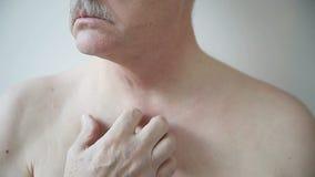 Mann mit Hautausschlag auf Hals stock video