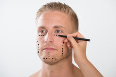 Mann mit Korrektur Mark For Plastic Surgery Stockfotos