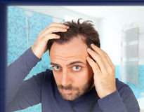Mann steuert Haarausfall Stockfotografie