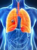 Mannelijke long - kanker Stock Afbeelding