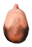 Mannelijke patroonkaalheid Stock Foto