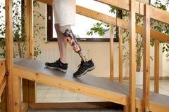 Mannelijke prothesedrager die een helling opleiden te beklimmen stock foto's