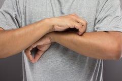 Mannen har problemhud som så mycket iching hans arm royaltyfria foton