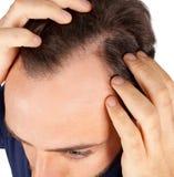 Mannen kontrollerar hårförlust royaltyfri fotografi