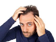 Mannen kontrollerar hårförlust Royaltyfri Bild