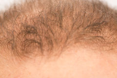 Mannen kontrollerar hårförlust Royaltyfri Foto