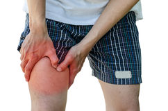 Mannen med benkalven smärtar Royaltyfria Bilder