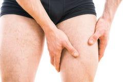 Mannen med quadriceps smärtar Royaltyfri Fotografi