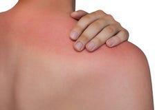 Mannen med rodnad kliande hud efter solbränna på vit isolerade bakgrund arkivbilder