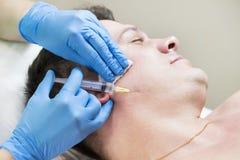 Mannen passerar en kurs av mesotherapy Royaltyfri Bild