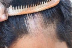 Mannen är hårförlust med hårkammen Fotografering för Bildbyråer