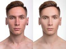 Mannen retuscherar före och efter Fotografering för Bildbyråer