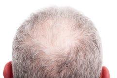 Mannen skalperar med problem för hårförlust royaltyfri bild