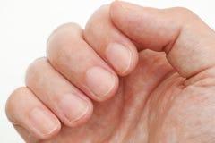 Mannen som ser hans finger, spikar Royaltyfria Foton