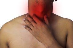 Mannen trycker pÃ¥ hans öm hals med röda fläckar som isoleras pÃ¥ vit bakgrund fotografering för bildbyråer