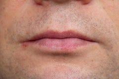 Mannlippenvirus angesteckter Herpes Lizenzfreies Stockfoto