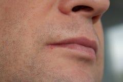 Mannlippenvirus angesteckter Herpes Stockfotografie