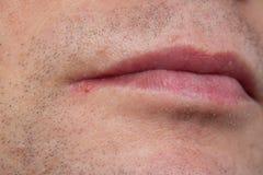 Mannlippenvirus angesteckter Herpes Lizenzfreie Stockfotos