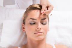 Mano che realizza terapia di agopuntura su Patient& x27; testa di s Fotografie Stock