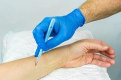 Mano con il guanto medico blu che tiene un bisturi chirurgico per fare un'incisione su un braccio Immagini Stock