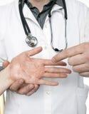 Mano de examen del dermatólogo con eczema severo foto de archivo libre de regalías