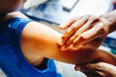Mano de la mujer para tratar el brazo paciente del ` s con las mordeduras de mosquito del ungüento imagen de archivo libre de regalías