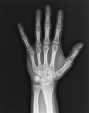 Mano de la radiografía Foto de archivo