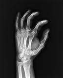 Mano de la radiografía. Foto de archivo