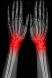 Mano de la radiografía del hombre con artritis Imagen de archivo libre de regalías