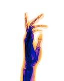 Mano dei raggi X Immagine Stock