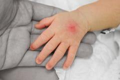 Mano del bebé enfermo con la inyección de las pistas (poste I. V inyección) o Fotos de archivo