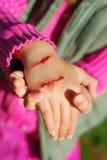 Mano del niño con la herida sangrienta Imagen de archivo
