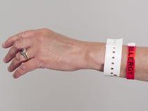 Mano della donna con il wristband di allergia Immagine Stock