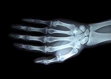 Mano derecha de la radiografía Fotos de archivo libres de regalías
