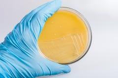 Mano en el guante que lleva a cabo la placa de Petri con las bacterias, trabajo en laboratorio bioquímico Imagen de archivo
