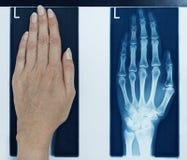 Mano izquierda del cuadro de la radiografía Imágenes de archivo libres de regalías