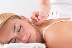 Mano que realiza terapia de la acupuntura en Customer& x27; parte posterior de s Fotos de archivo